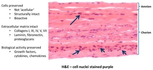 Amniotic membrane cross section