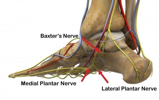 Heel Pain Compressed Nerve