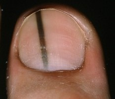 Don\'t Be Misdiagnosed. Know the Signs of Toenail Melanoma