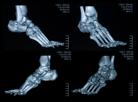 Medical Evaluation of the Foot And Ankle