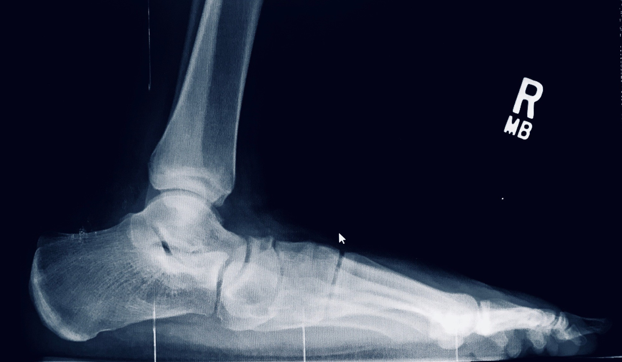 Flat Foot Pre-Op Reconstructive Surgery