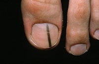 Podiatric Skin Conditions