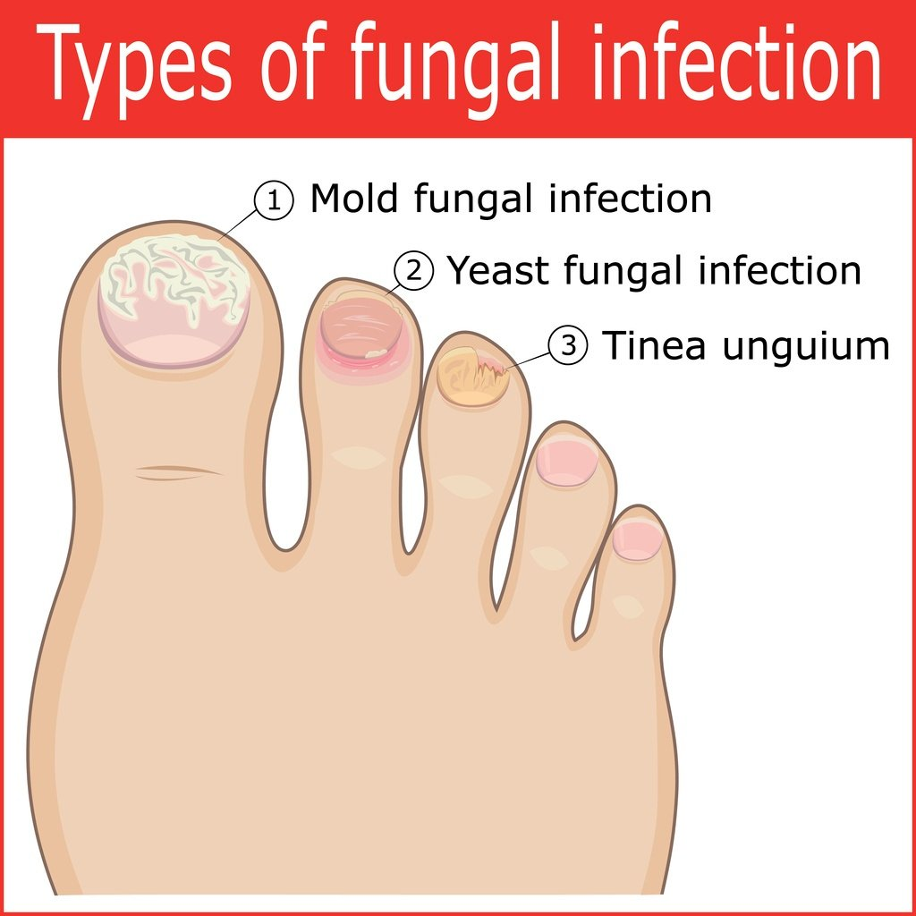 Cure Toenail Pain From Fungus Infection